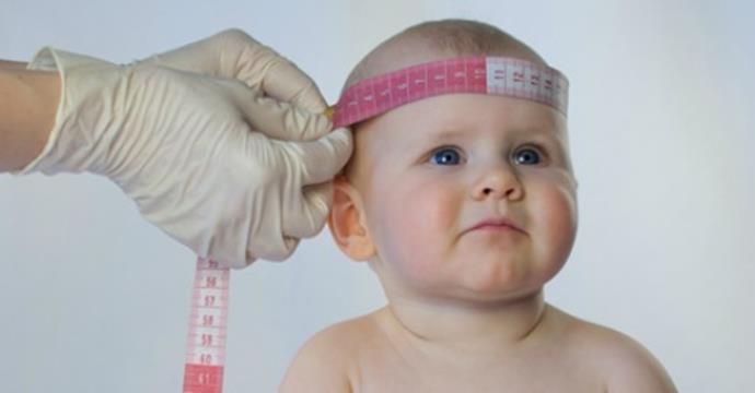 O que é microcefalia e o quanto devemos nos preocupar?